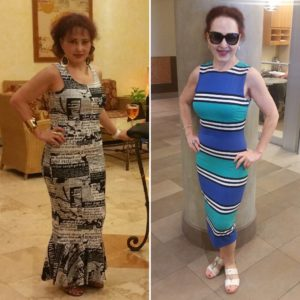 Tatyana Before & After IMG_4759 (1)